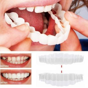 Snap On Smile Top & Bottom Veneers (Pack 2)